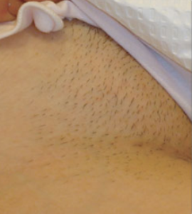 Bikini Line Clinic Doctors Removal Laser Treatment Hair In NorwichThe EH9W2IYD